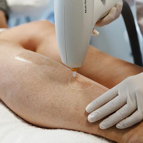 Nd-YAG-laserbehandeling