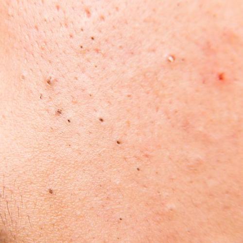 acné comedonica