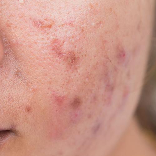 acné excoriee