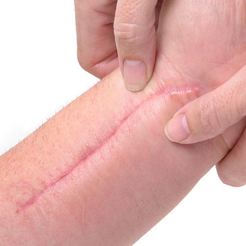 normaal litteken